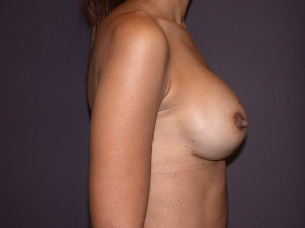 Breast Augmentation Gallery - Patient 4757387 - Image 4