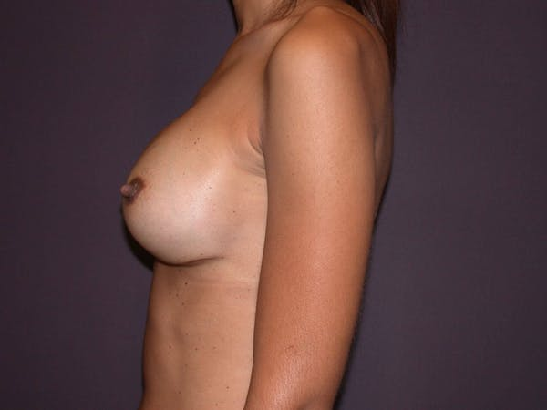 Breast Augmentation Gallery - Patient 4757387 - Image 6