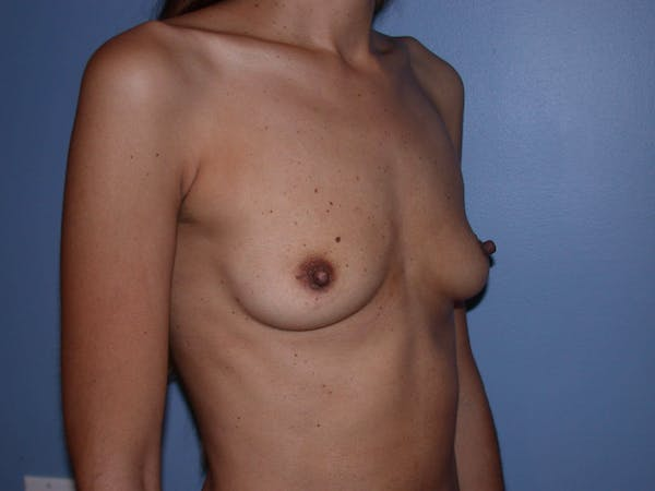 Breast Augmentation Gallery - Patient 4757387 - Image 7