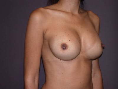 Breast Augmentation Gallery - Patient 4757387 - Image 8