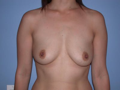 Breast Augmentation Gallery - Patient 4757392 - Image 11