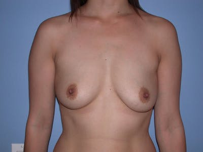 Breast Augmentation Gallery - Patient 4757392 - Image 1