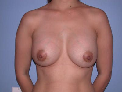 Breast Augmentation Gallery - Patient 4757392 - Image 2