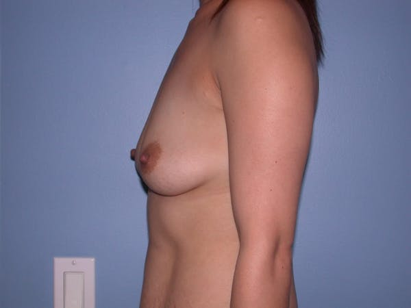 Breast Augmentation Gallery - Patient 4757392 - Image 3