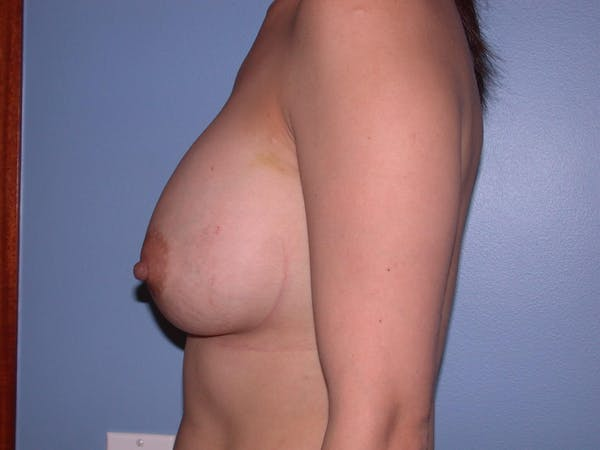 Breast Augmentation Gallery - Patient 4757392 - Image 4
