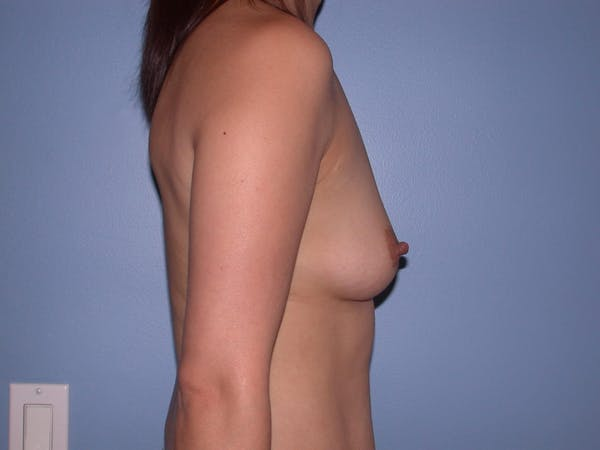 Breast Augmentation Gallery - Patient 4757392 - Image 5