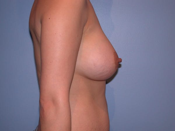 Breast Augmentation Gallery - Patient 4757392 - Image 6