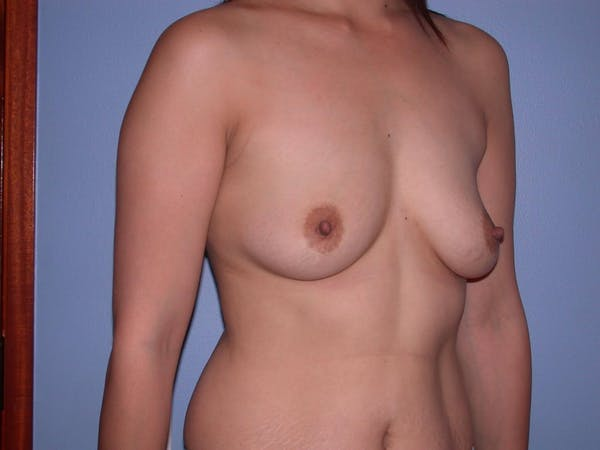 Breast Augmentation Gallery - Patient 4757392 - Image 7