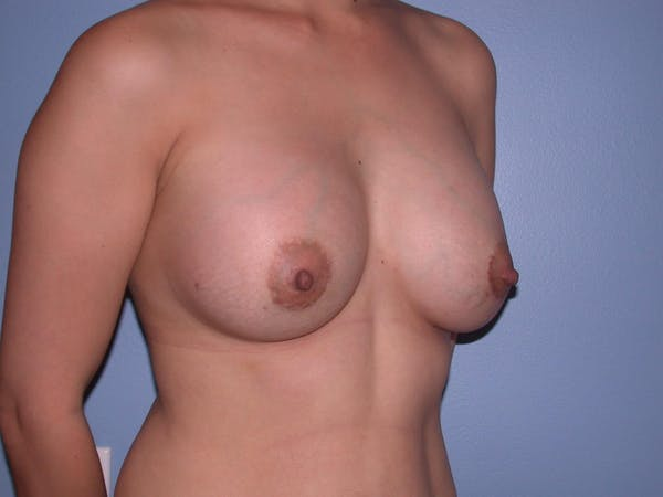 Breast Augmentation Gallery - Patient 4757392 - Image 8
