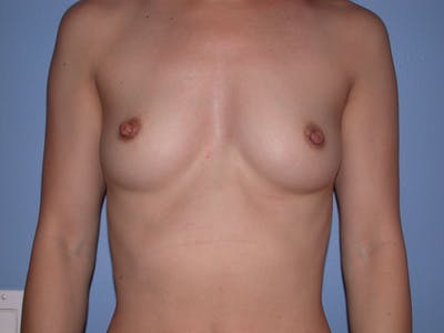 Breast Augmentation Gallery - Patient 4757395 - Image 1