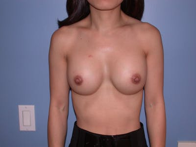 Breast Augmentation Gallery - Patient 4757395 - Image 2