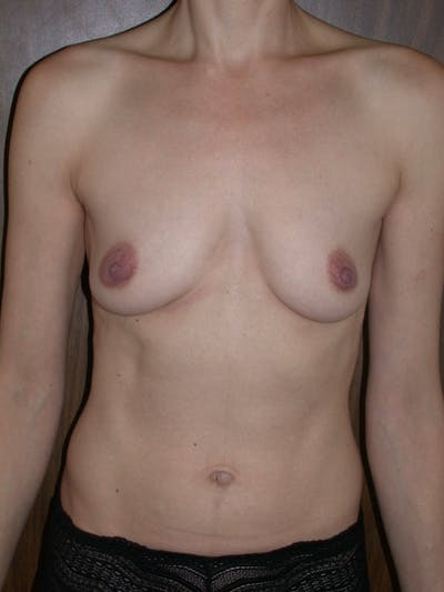 Breast Augmentation Gallery - Patient 4757398 - Image 1