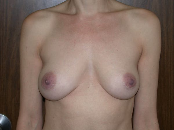 Breast Augmentation Gallery - Patient 4757398 - Image 2