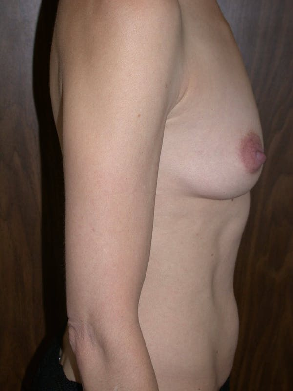 Breast Augmentation Gallery - Patient 4757398 - Image 3