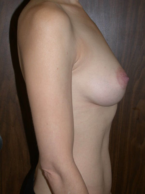 Breast Augmentation Gallery - Patient 4757398 - Image 4