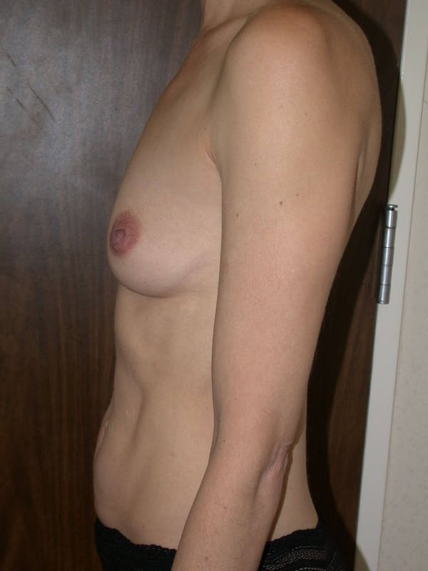 Breast Augmentation Gallery - Patient 4757398 - Image 5