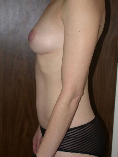 Breast Augmentation Gallery - Patient 4757398 - Image 6