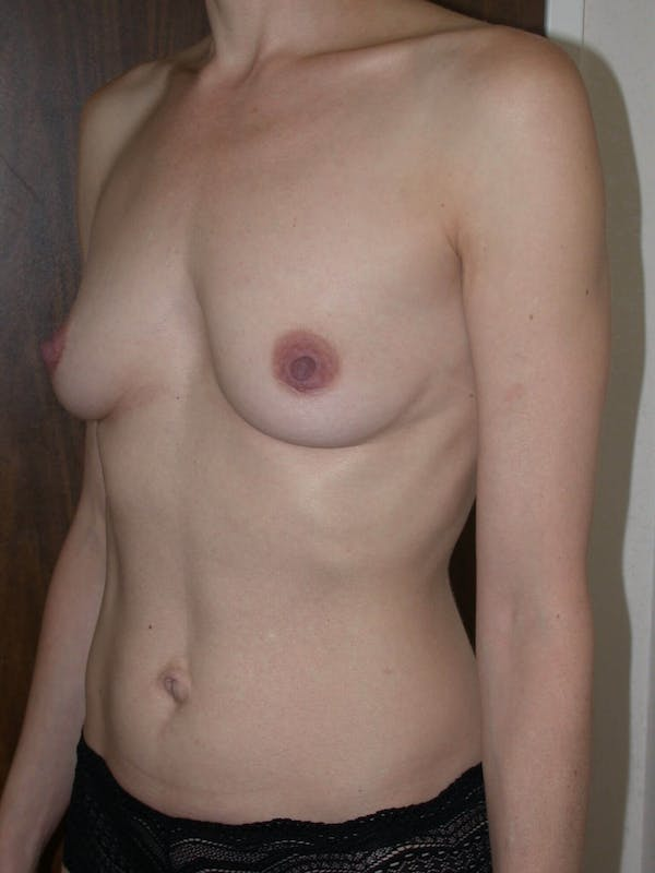 Breast Augmentation Gallery - Patient 4757398 - Image 7