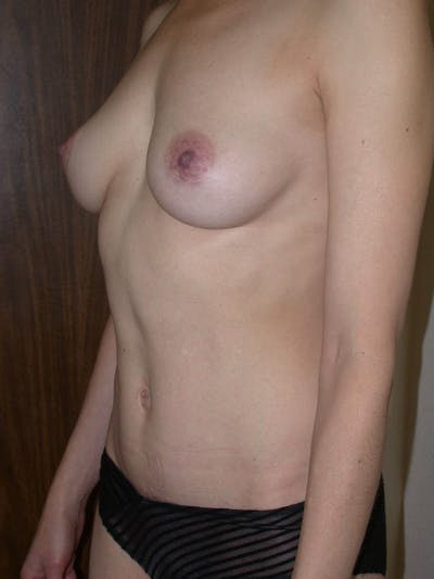 Breast Augmentation Gallery - Patient 4757398 - Image 8
