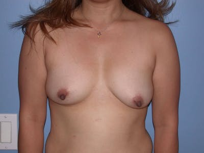 Breast Augmentation Gallery - Patient 4757399 - Image 14