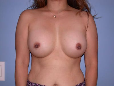 Breast Augmentation Gallery - Patient 4757399 - Image 2