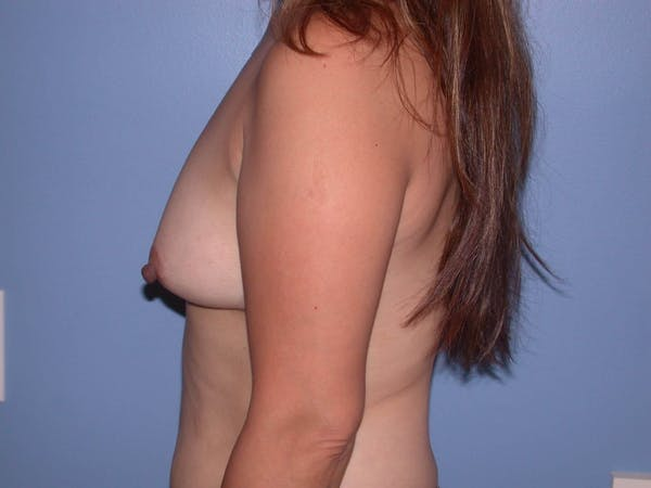 Breast Augmentation Gallery - Patient 4757399 - Image 5