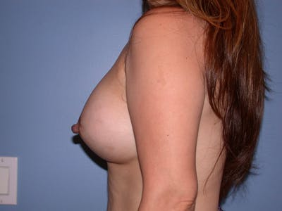 Breast Augmentation Gallery - Patient 4757399 - Image 6