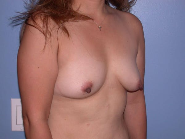 Breast Augmentation Gallery - Patient 4757399 - Image 7