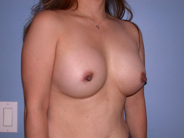 Breast Augmentation Gallery - Patient 4757399 - Image 8