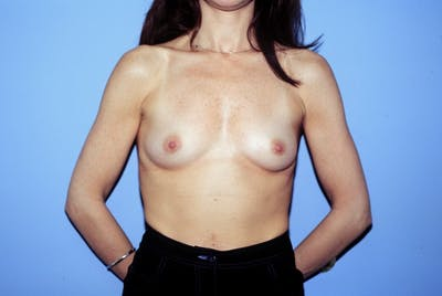 Breast Augmentation Gallery - Patient 4757400 - Image 1