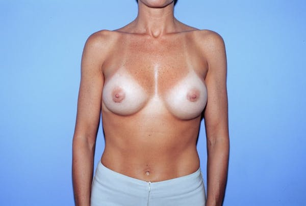 Breast Augmentation Gallery - Patient 4757400 - Image 2