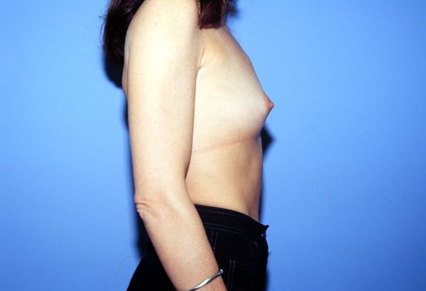 Breast Augmentation Gallery - Patient 4757400 - Image 3
