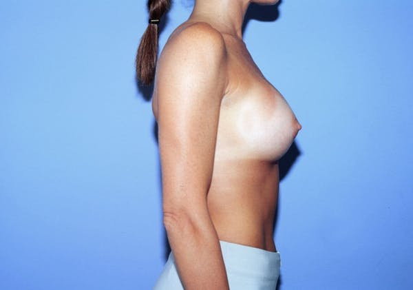 Breast Augmentation Gallery - Patient 4757400 - Image 4