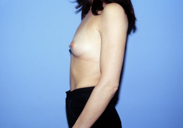 Breast Augmentation Gallery - Patient 4757400 - Image 5