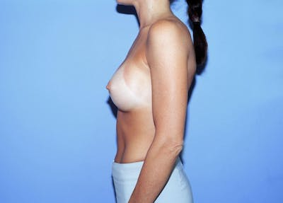 Breast Augmentation Gallery - Patient 4757400 - Image 6