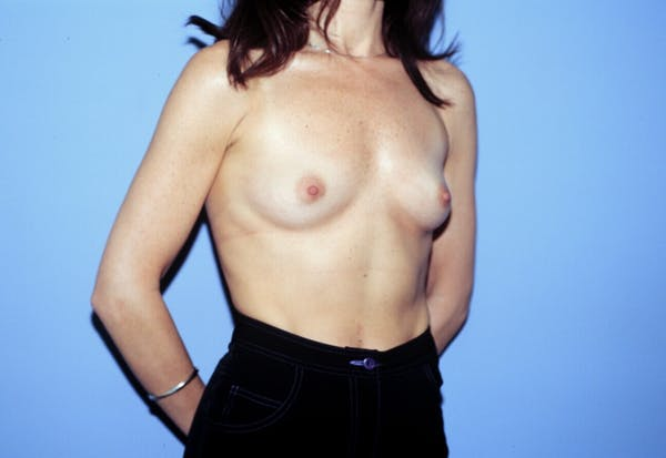 Breast Augmentation Gallery - Patient 4757400 - Image 7