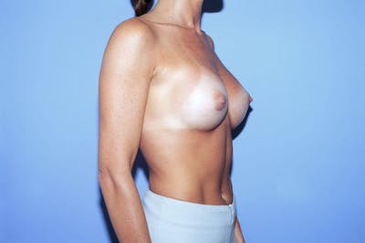 Breast Augmentation Gallery - Patient 4757400 - Image 8