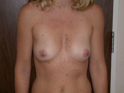 Breast Augmentation Gallery - Patient 4757402 - Image 16