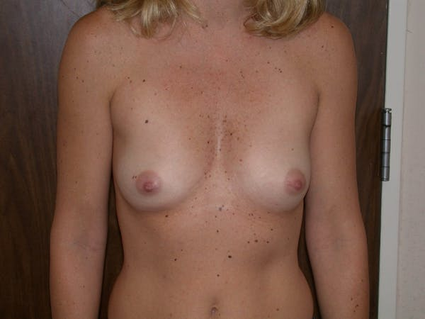 Breast Augmentation Gallery - Patient 4757402 - Image 1