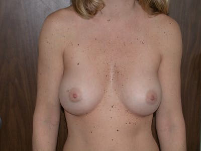 Breast Augmentation Gallery - Patient 4757402 - Image 2