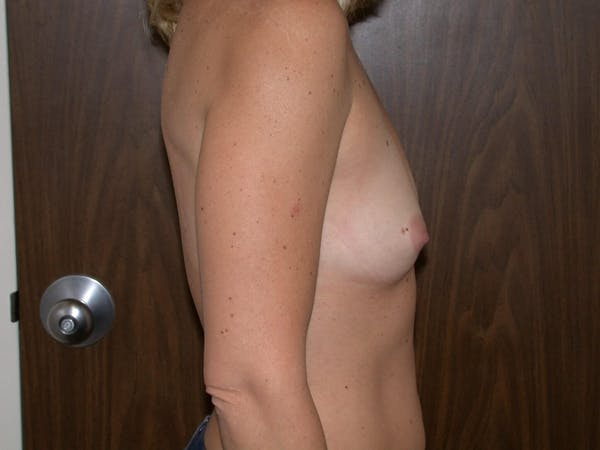 Breast Augmentation Gallery - Patient 4757402 - Image 3