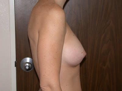 Breast Augmentation Gallery - Patient 4757402 - Image 4