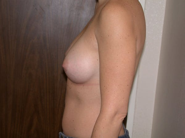 Breast Augmentation Gallery - Patient 4757402 - Image 6