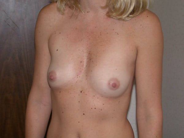 Breast Augmentation Gallery - Patient 4757402 - Image 7