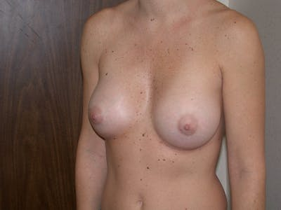 Breast Augmentation Gallery - Patient 4757402 - Image 8