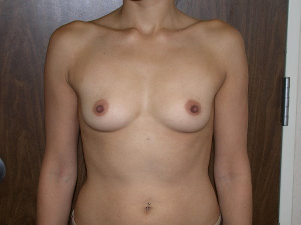 Breast Augmentation Gallery - Patient 4757403 - Image 1