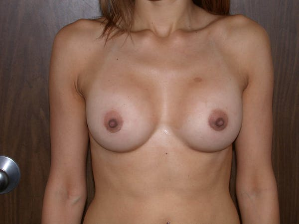 Breast Augmentation Gallery - Patient 4757403 - Image 2