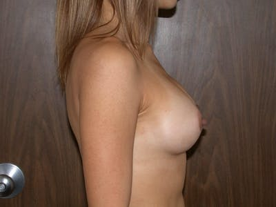 Breast Augmentation Gallery - Patient 4757403 - Image 4