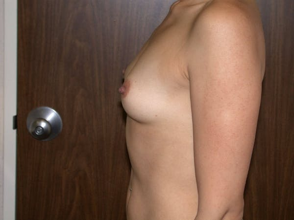 Breast Augmentation Gallery - Patient 4757403 - Image 5