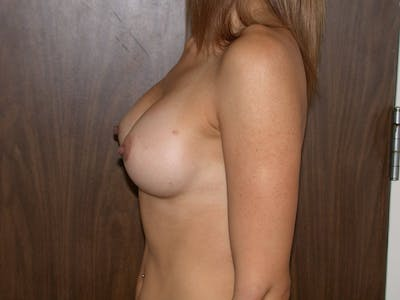 Breast Augmentation Gallery - Patient 4757403 - Image 6